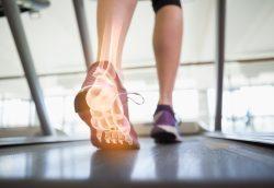 Obezite Ameliyatı Sonrası Kemik Yapısı Değişiyor